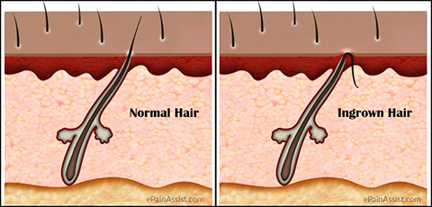 how to know if your hair follicle is dead